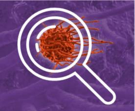 macrophage 4